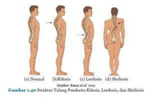 lordosis, kifosis, skoliosis